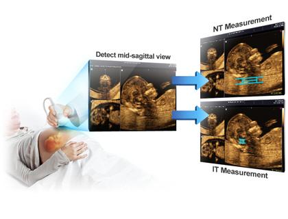 Volume NT & IT™ - Automatikus NT/IT mérés